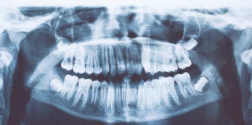 Photo of India, dentisti estraggono oltre 500 denti dalla bocca di un bambino di 7 anni