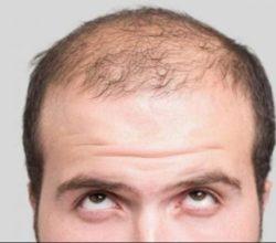 lavoro-perdita-capelli
