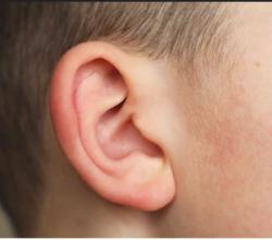 ricostruito-orecchio-stampante-3d