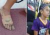 Non ha i soldi per comprare le scarpe e fabbrica da sola delle Nike con le bende: la storia di Rhea