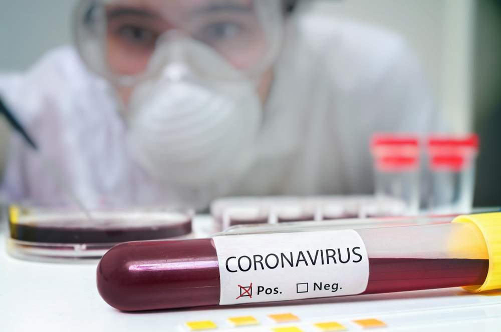 Photo of Coronavirus, perdita del senso dell'olfatto e del gusto tra i sintomi