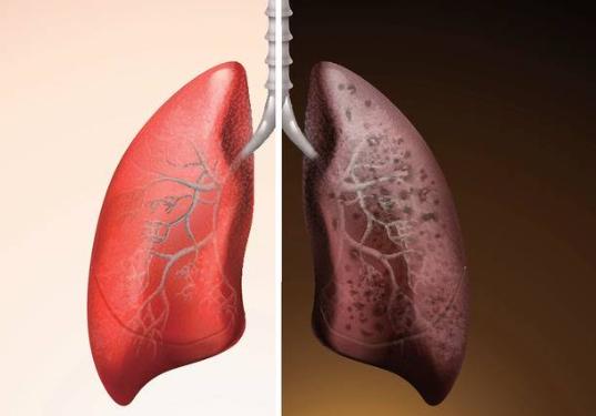 Smesso di fumare male ai polmoni