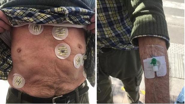 grosseto-anziano-paziente-dimesso-elettrodi-cannula