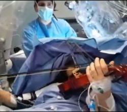 suona-violino-operazione-tumore-cervello