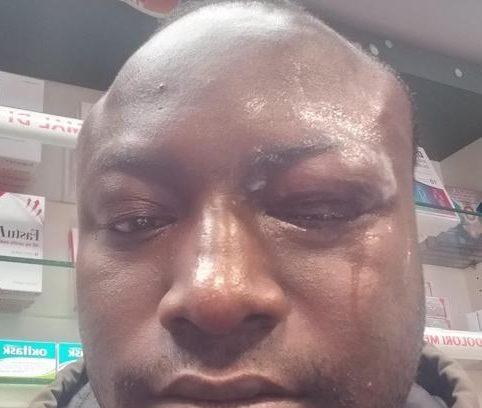 Photo of Torino, richiedente asilo ferma rapina in farmacia ma viene picchiato
