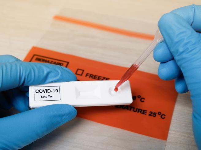 Photo of Coronavirus: gli anticorpi dei guariti diminuiscono dopo 3 mesi, uno studio cinese lo confermerebbe