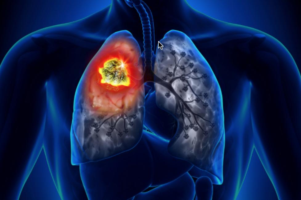 Photo of Cancro ai polmoni, nuovo farmaco riduce dell'80% rischio di recidiva o morte