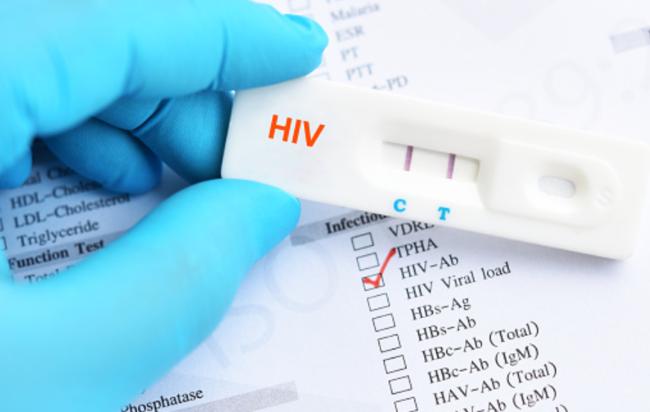 Funziona il cocktail di farmaci per debellare l'Aids, brasiliano guarito dall'Hiv