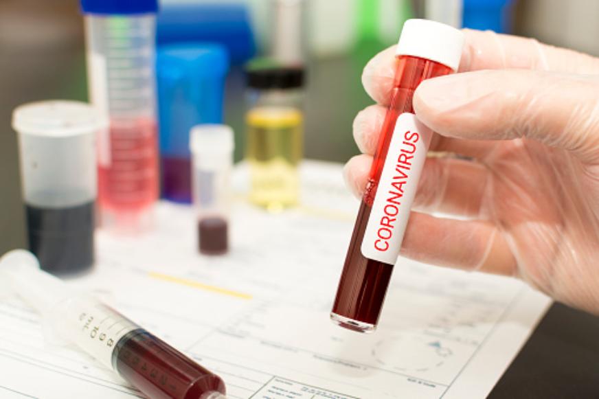 coronavirus-farmaci-bloccano-replicazione