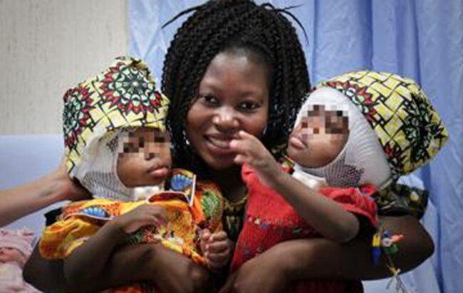 gemelline-siamesi-separate-bambino-gesu