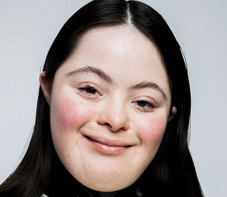 Photo of Ellie è la prima modella Gucci con la sindrome di Down