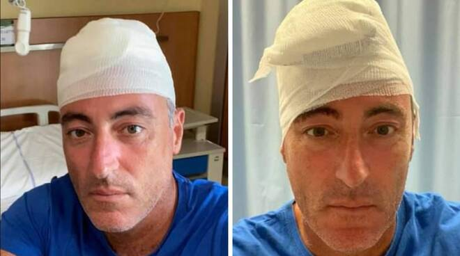 incidente-gallera-sbatte-testa-sutura