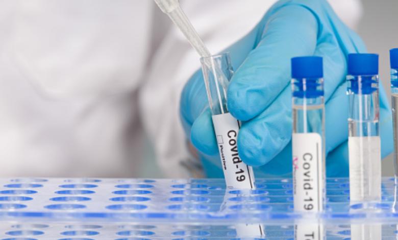 covi-anticorpi-8 mesi-studio
