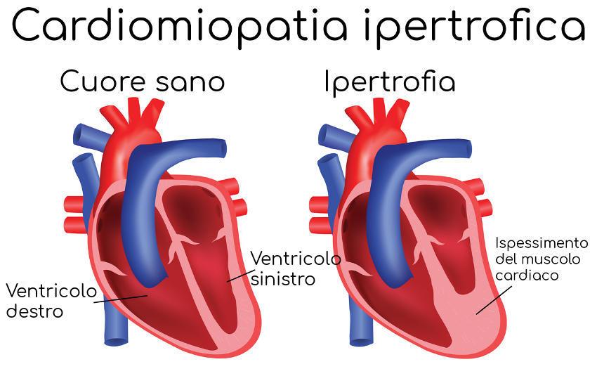 cardiomiopatia-ipertrofica-malattia-eriksen-infarto