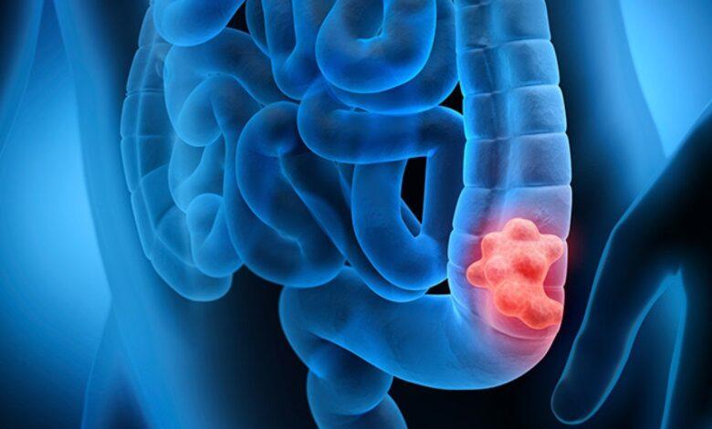 tumore-intestino